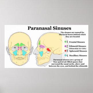 Diagram of Human Paranasal Sinuses Poster