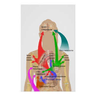 Diagram of Metastasis Sites for Common Cancers Poster