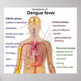 Diagram of the Main Symptoms of Dengue Fever Poster