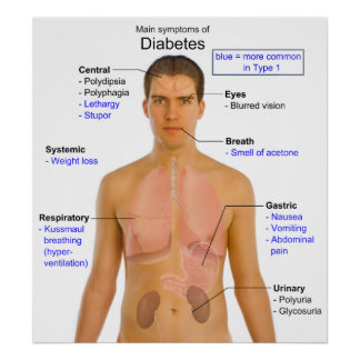 Diagram of the Main Symptoms of Diabetes in Humans Posters