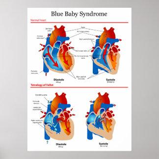 Diagrama anatómico del corazón del síndrome del be póster
