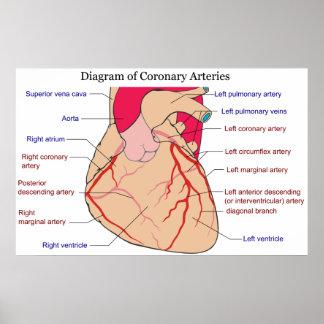 Diagrama de las arterias coronarias de un corazón póster