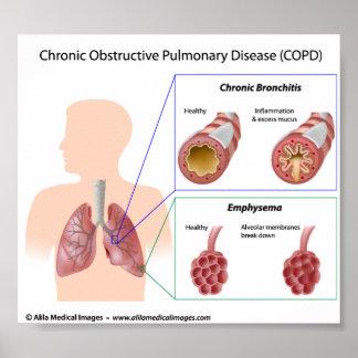 Diagrama de las enfermedades pulmonares de COPD Poster