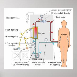Diagrama de un tratamiento médico de la póster
