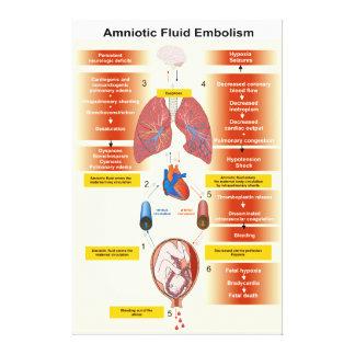 Diagrama de una embolia AFE del líquido amniótico Lienzo Envuelto Para Galerias