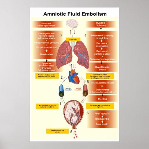 Diagrama de una embolia AFE del líquido amniótico Póster