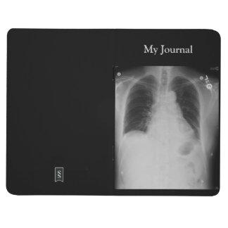 Diario del ~ del rayo del pecho X Cuaderno