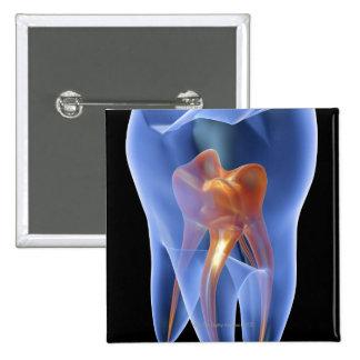 Diente, sección representativa transparente de una pin cuadrada 5 cm