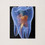 Diente, sección representativa transparente de una rompecabezas con fotos