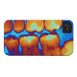 Dientes con los rellenos (verde), radiografía colo iPhone 4 Case-Mate cárcasa