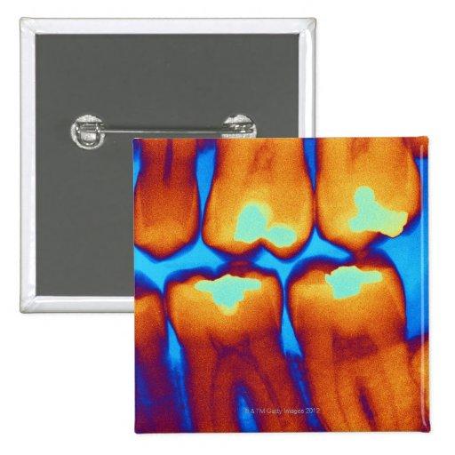 Dientes con los rellenos (verde), radiografía colo pin cuadrada 5 cm