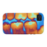 Dientes con los rellenos (verde), radiografía iPhone 4/4S carcasa