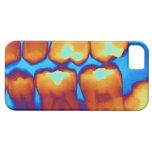 Dientes con los rellenos (verde), radiografía iPhone 5 funda