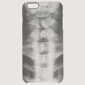 Digital Cervical X-Ray Art Clear Case