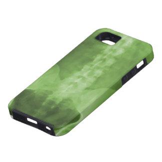 Digital X-Ray Art iPhone 5 Case