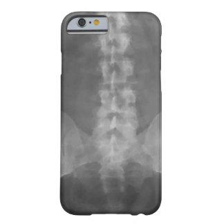 Digital X-Ray Art iPhone 6 Case