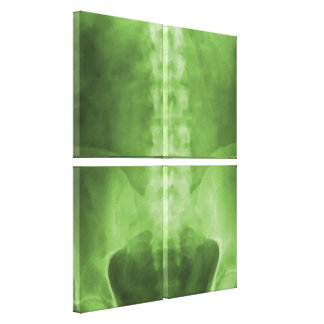 Digital X-Ray Art Wrapped Canvas