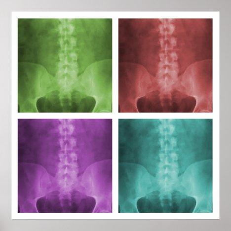 Digital X-Ray Pop Art Square Poster