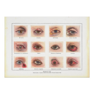Diseases of Eye Anatomy Poster French