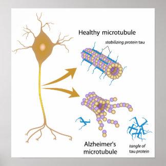 Disintegrating microtubules in Alzheimer's Poster