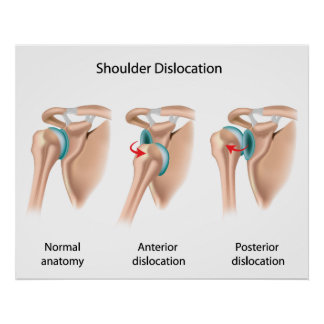 Dislocated shoulder Poster