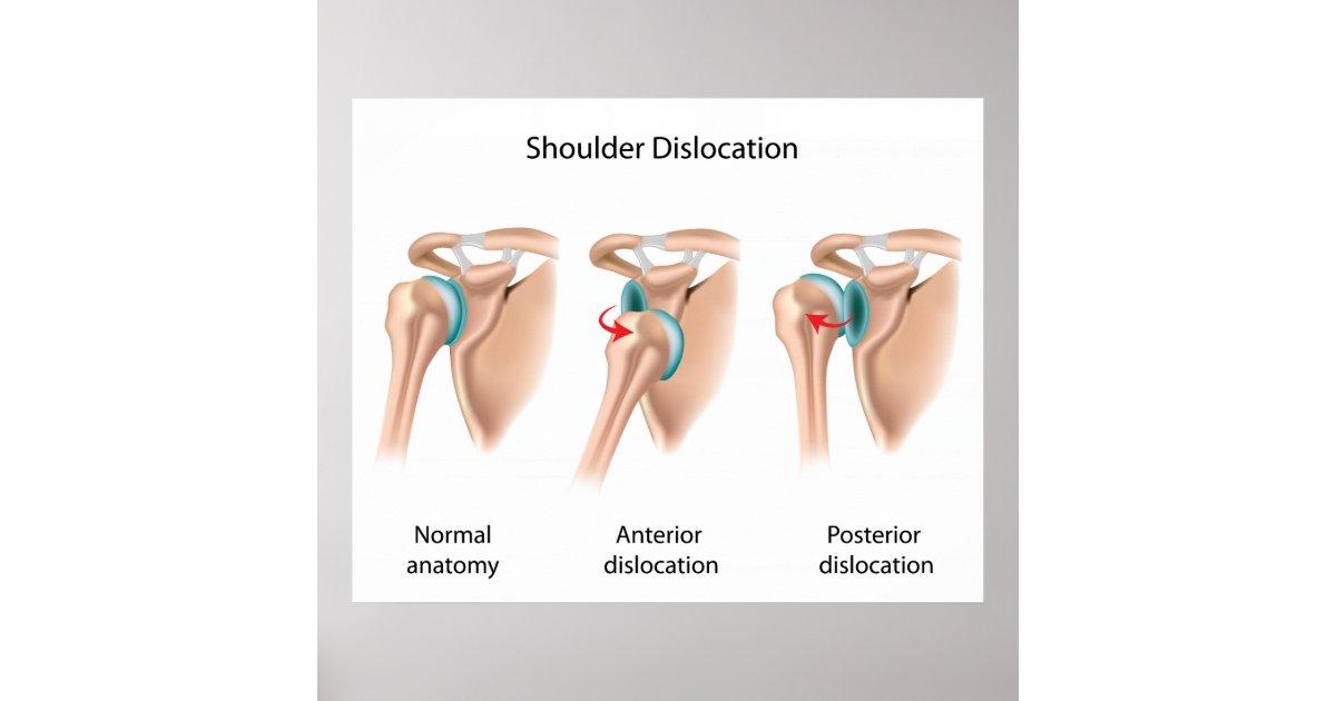 Dislocated shoulder Poster | Zazzle.com