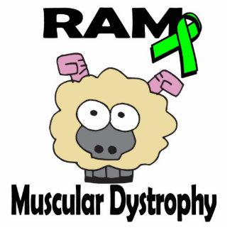 Distrofia muscular de RAM Escultura Fotográfica