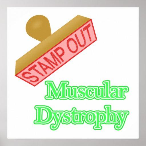 Distrofia muscular impresiones
