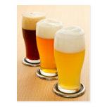 Diversos tipos de cerveza tarjetas postales