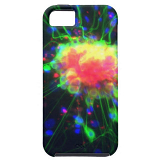 Dorsal root ganglion iPhone 5 case