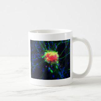 Dorsal root ganglion coffee mug