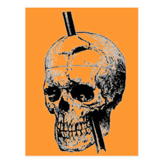 Driving A Long Nail Through The Skull Of A Corpse Postcard