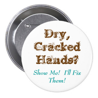 Dry,CrackedHands?, Show Me!  I'll Fix Them! Pinback Button