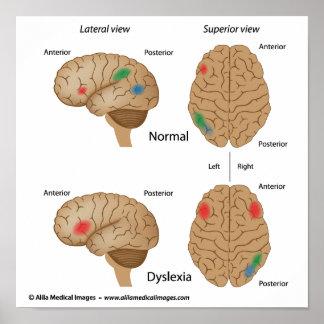 Dyslexia brain activity Poster