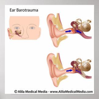 Ear barotrauma diagram poster