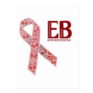 EB Awareness Ribbon Postcard
