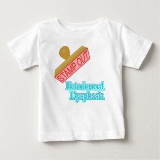 Ectodermal Dysphasia Baby T-Shirt