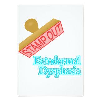 Ectodermal Dysphasia Card