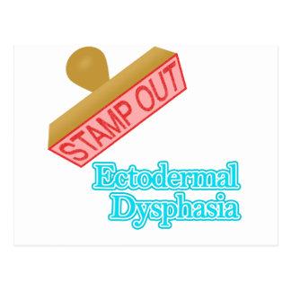 Ectodermal Dysphasia Postcard