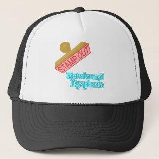 Ectodermal Dysphasia Trucker Hat