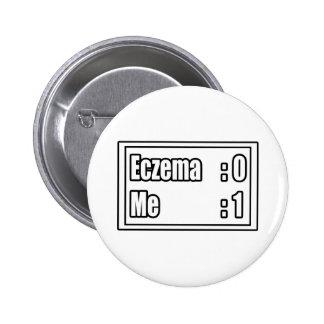 Eczema Scoreboard Pinback Buttons