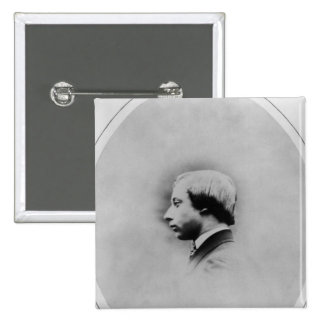 Edward VII, 1860 Pinback Button