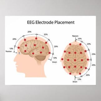 EEG electrode placement diagram Poster