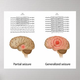 EEG en poster de la epilepsia parcial y generaliza