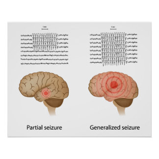 EEG in partial and generalized epilepsy Poster