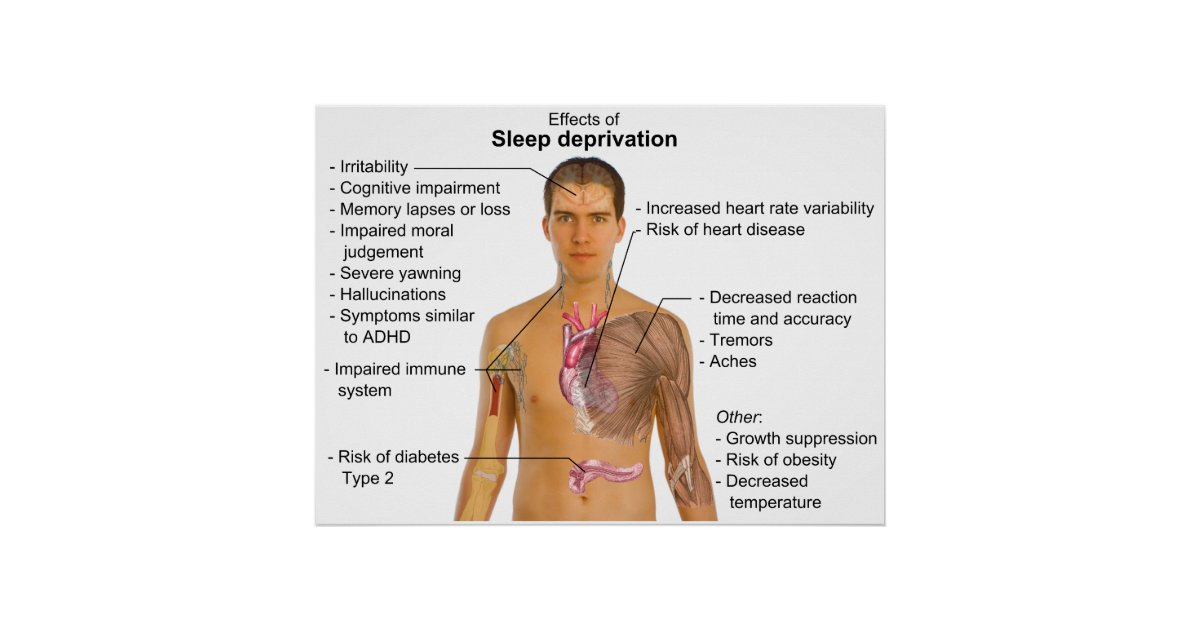effects of sleep deprivation essays