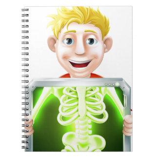 Ejemplo de la radiografía cuadernos