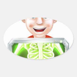 Ejemplo de la radiografía colcomanias oval