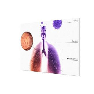 Ejemplo de un ataque de asma del polen impresión en lona estirada