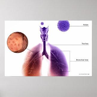 Ejemplo de un ataque de asma del polen póster